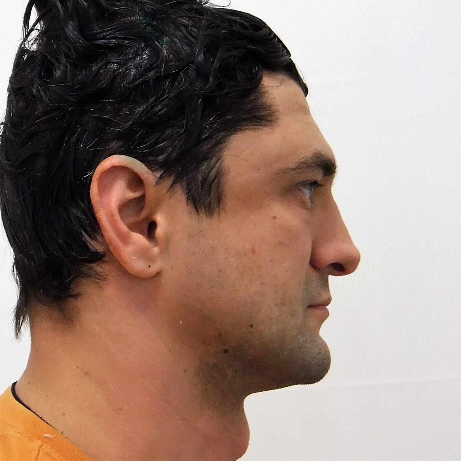 человека, форма мужского лба надбровные дуги фото одеться для